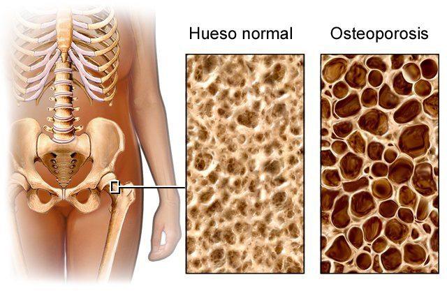 Hábitos saludables, calcio y vitamina D, los pilares para prevenir la osteoporosis
