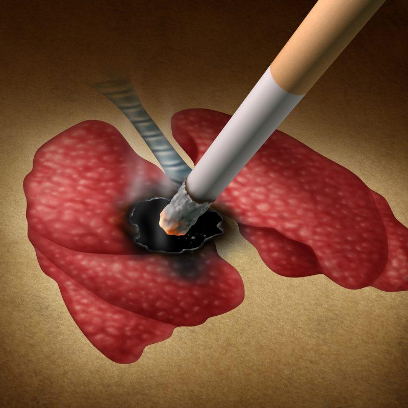 Dejar de fumar y la tomografía, claves para frenar la mortalidad del cáncer de pulmón