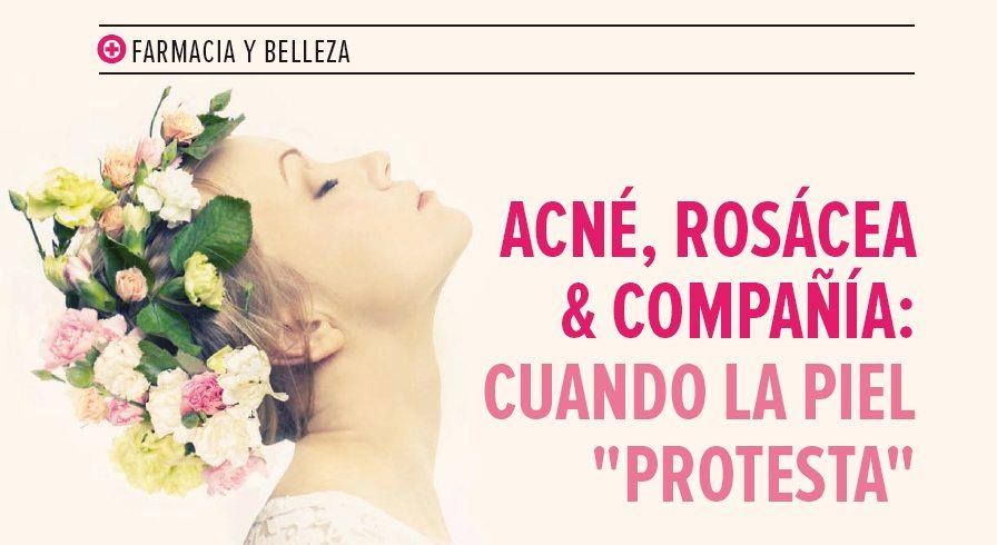 """Acné, rosácea & compañía: cuando la piel """"protesta"""""""