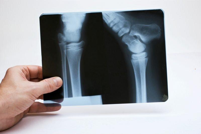 Las lesiones cartilaginosas se benefician de las infiltraciones de plasma rico en plaquetas