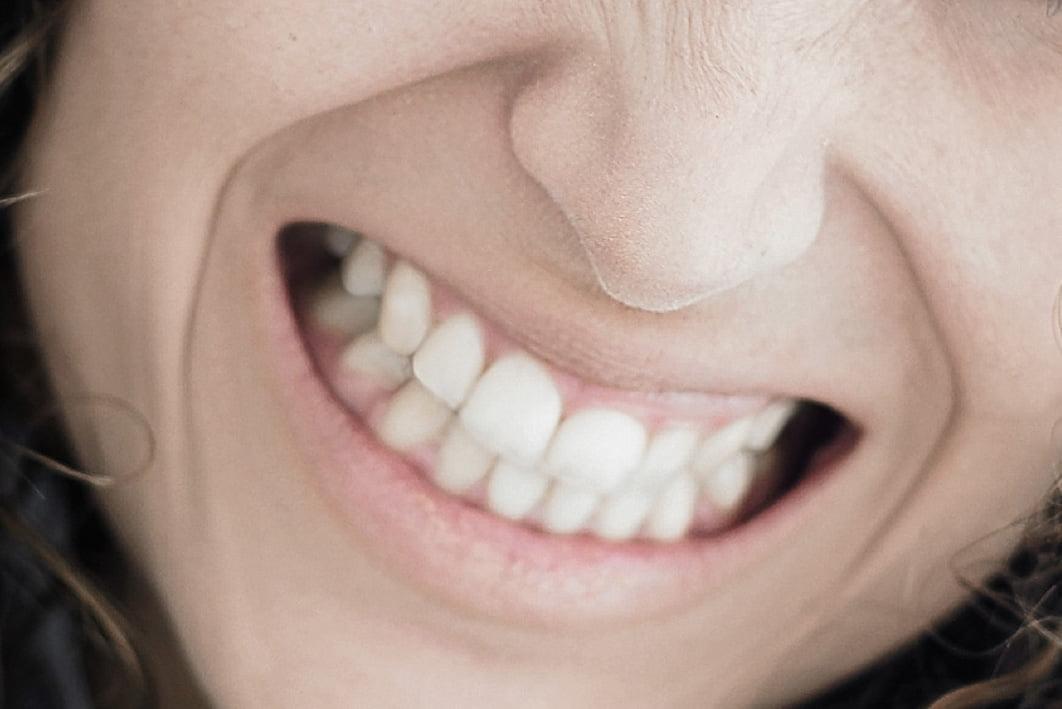 El estrés está detrás del 80% de los casos de bruxismo en adultos
