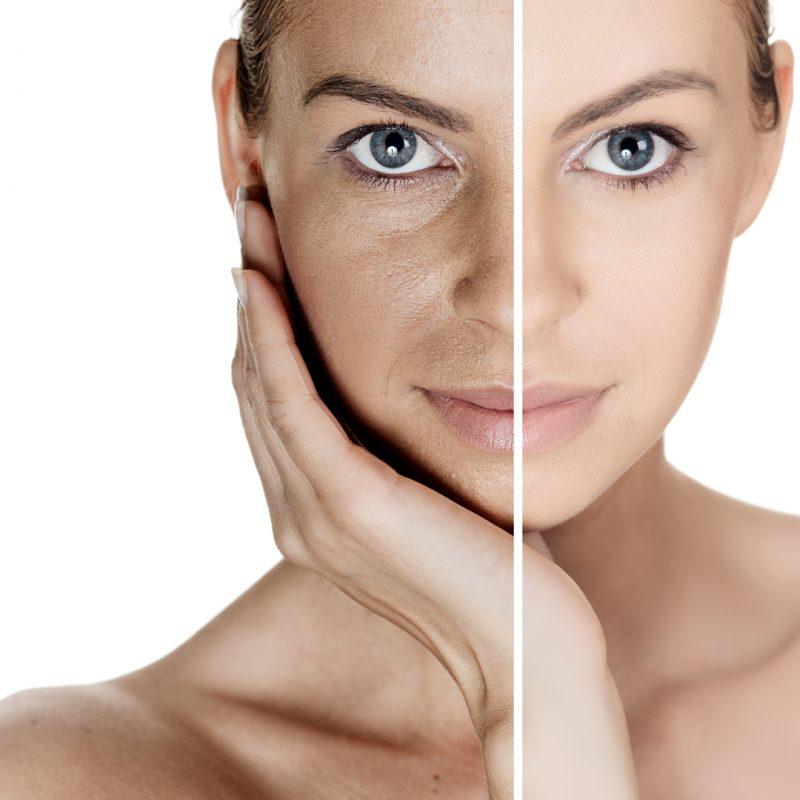 Cronoenvejecimiento y fotoenvejecimiento de la piel: dos caras de la misma moneda