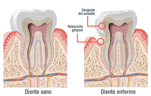 Sensibilidad dental: 10 consejos para combatirla