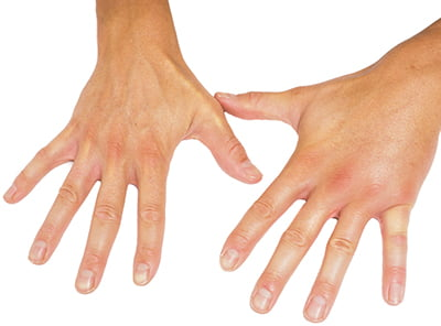 El abordaje consensuado entre reumatólogos y dermatólogos, clave en artritis psoriásica