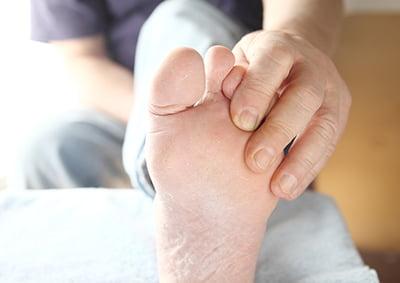 Incluir a los podólogos en el sistema público evitaría amputaciones por pie diabético