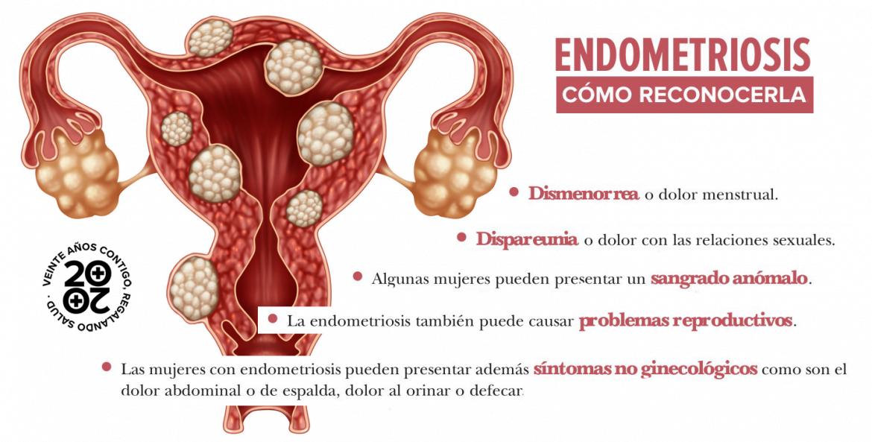 Endometriosis: diagnóstico tardío