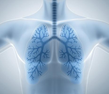 Unidades especializadas, clave en el tratamiento de las bronquiectasias