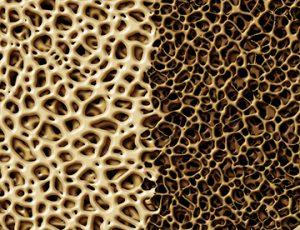 """Osteoporosis: """"El principal problema sigue siendo el cumplimiento terapéutico"""""""