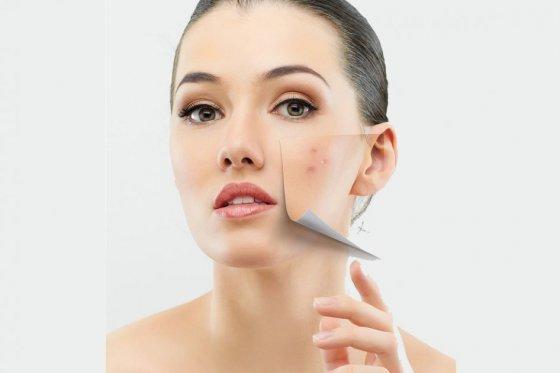 Las 4 patologías dermatológicas más frecuentes en la mujer