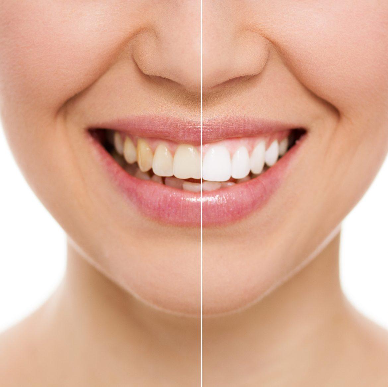 Blanqueamiento dental: 10 cosas que debes saber