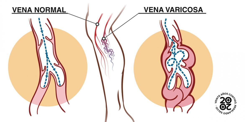 Una cuarta parte de los adultos padece enfermedad venosa crónica