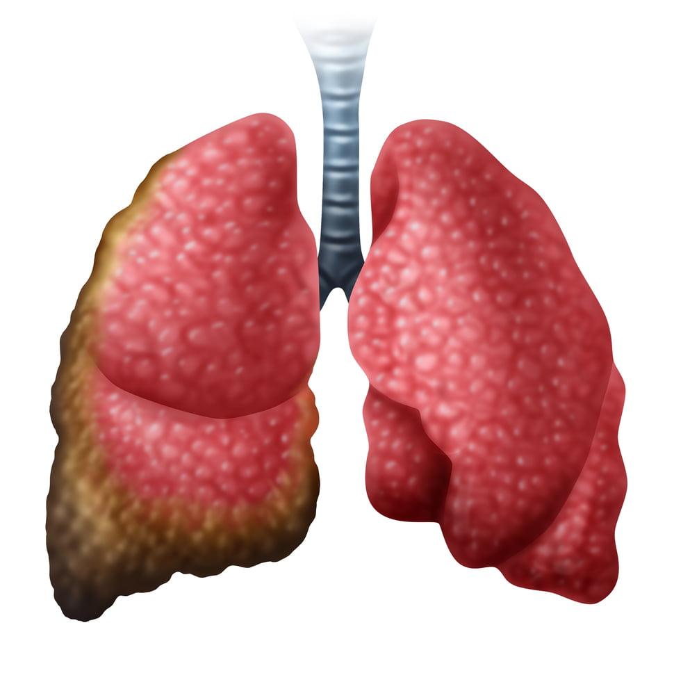 La supervivencia en cáncer de pulmón en estadios iniciales es mayor en mujeres