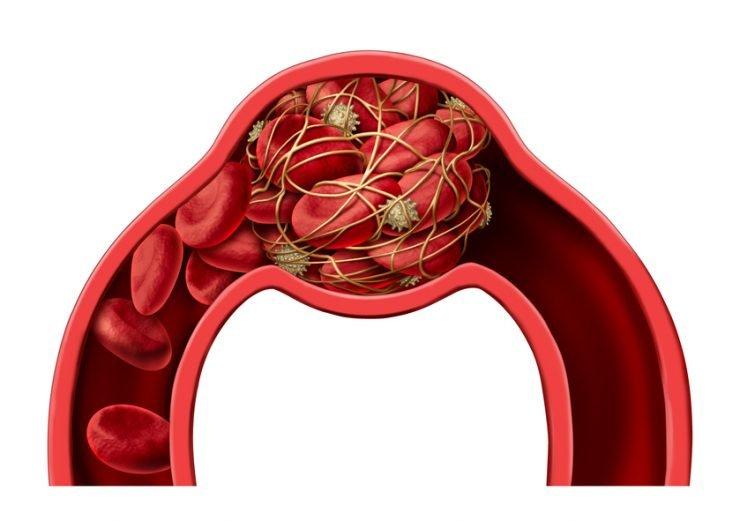 riesgo trombosis