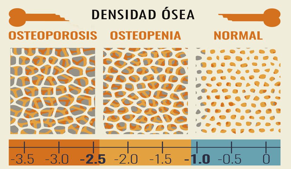 La pirámide del tratamiento de la osteoporosis