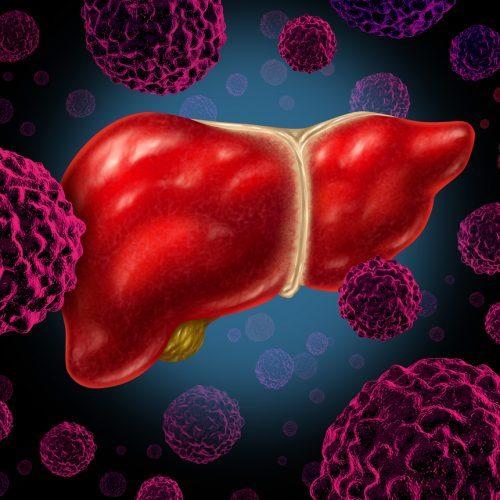 Los nuevos tratamientos han reducido el número de trasplantes hepáticos