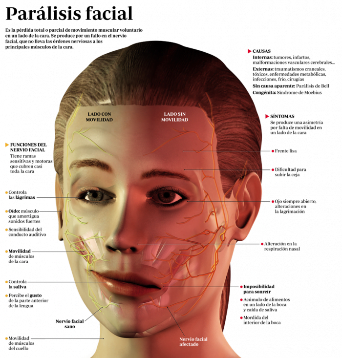 Parálisis facial: la recuperación es posible