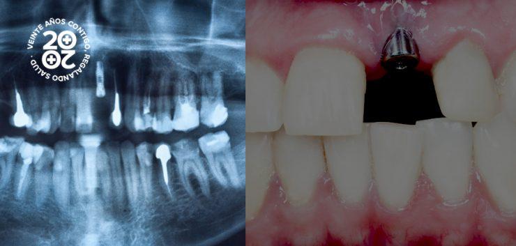 perder un implante dental