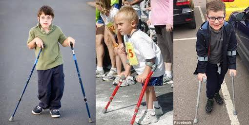 Los niños mayores de 2 años con distrofia muscular de Duchenne podrán acceder a tratamiento