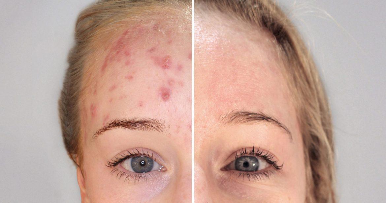 Terapia biofotónica: nuevo tratamiento para el acné sin fármacos