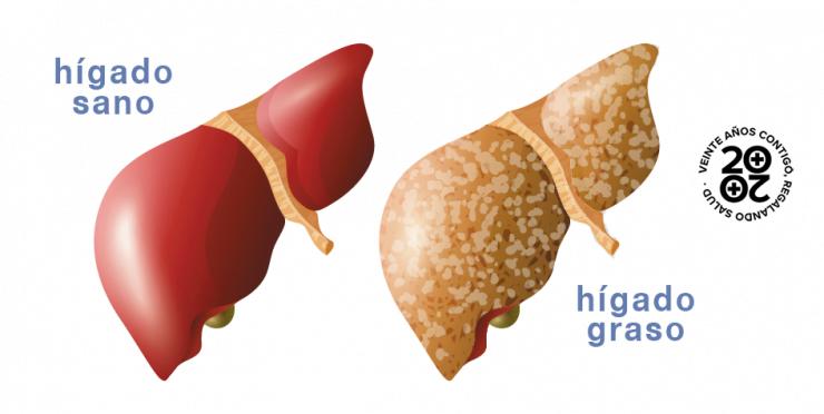hígado graso no alcohólico