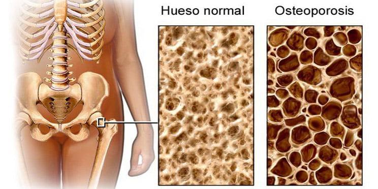 Osteoporosis, epidemia mundial en mujeres postmenopáusicas
