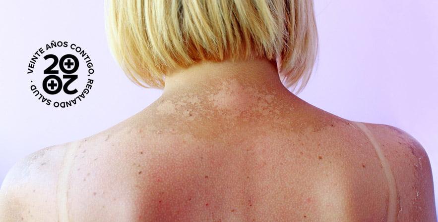 Reparar la piel