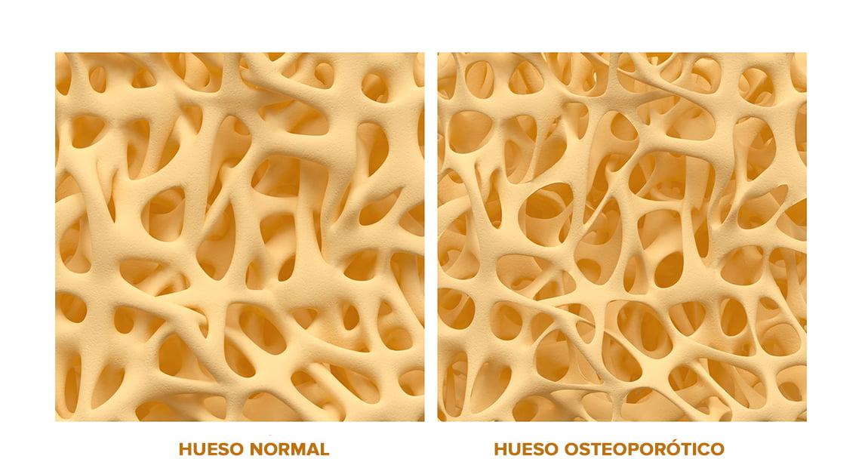 Los tratamientos para la osteoporosis, de los que más se abandonan