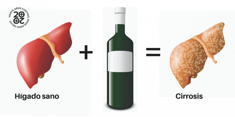 Los efectos del alcohol en el hígado: hígado graso, hepatitis, cirrosis