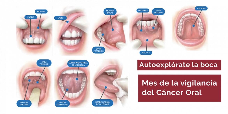 Arranca una campaña para el diagnóstico precoz del cáncer oral