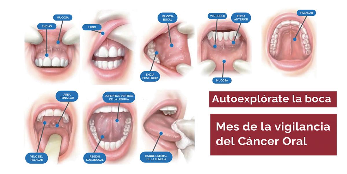 Cancer bucal en panama, Ce sunt aftele şi ulceraţiile mucoasei bucale?