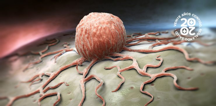 Cómo se origina el cáncer de mama
