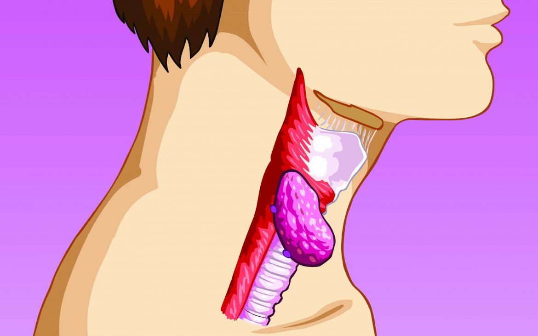 Laringitis: a cada tipo, un tratamiento