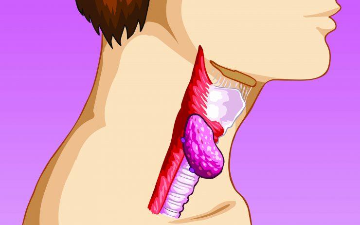 Cómo curar una laringitis