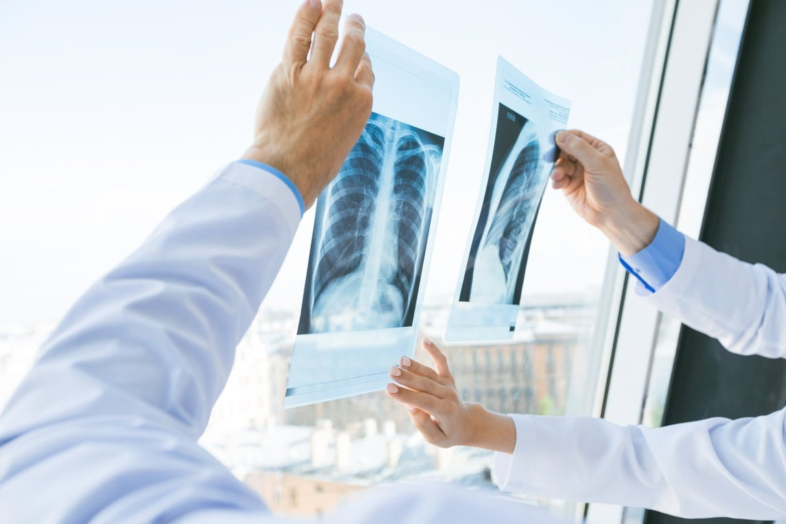 Casi 50.000 andaluces serán diagnosticados de cáncer en 2019