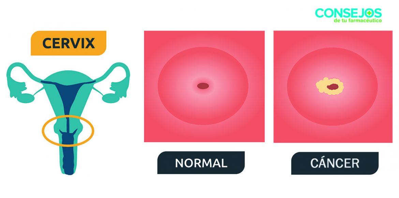 Infección por VPH, una de las enfermedades de transmisión sexual más comunes