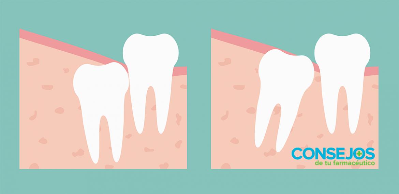 La colocación de los dientes influye en la salud