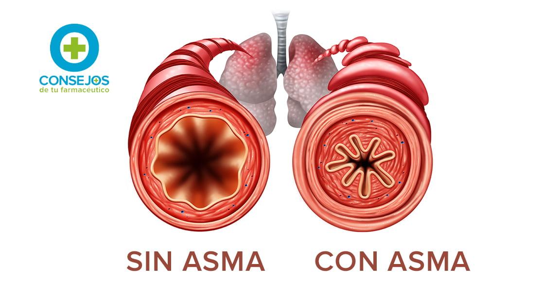 La alergia es uno de los principales factores que desencadenan el asma