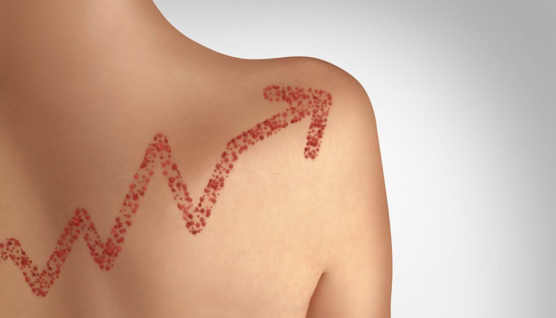 Los casos de sarampión en el mundo se incrementan un 300%