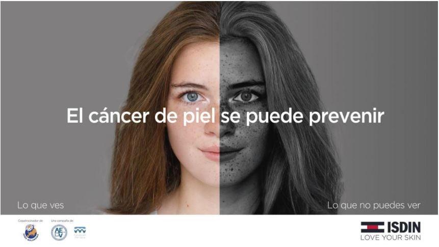 """Isdin y farmacias de toda España lanzan la campaña """"El cáncer de piel se puede prevenir"""""""