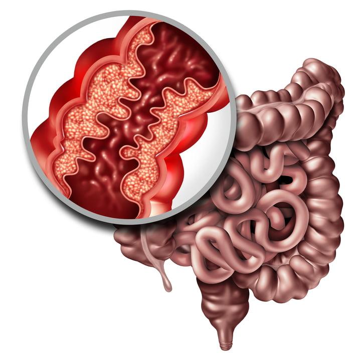 Una dieta rica en prebióticos podría ayudar en la enfermedad inflamatoria intestinal