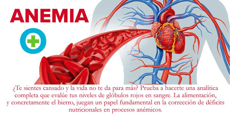 Tipos de anemia: lo que debes comer