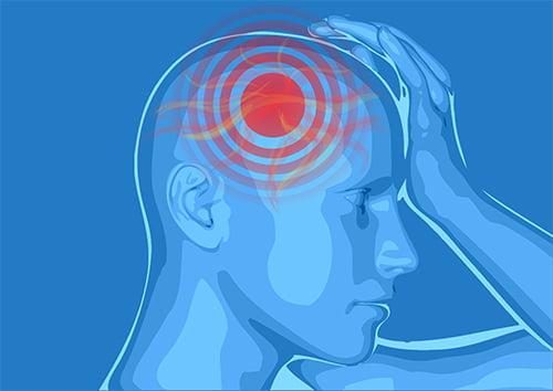 El 75% de los pacientes con migraña tarda más de 2 años en obtener un diagnóstico