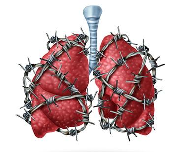 enfermos de fibrosis quistica